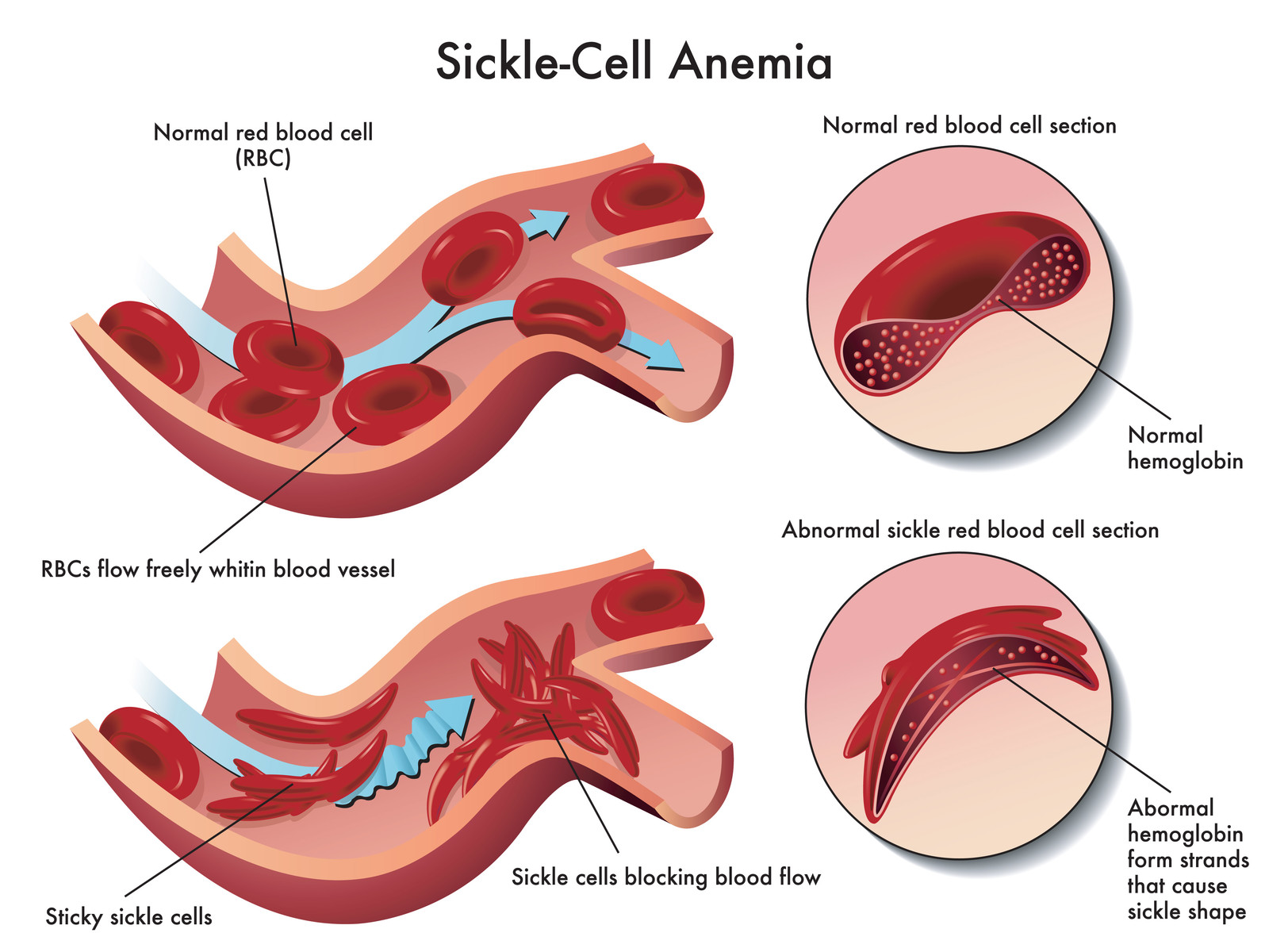 sickle cell plan of care The inset image shows a cross-section of a sickle cell with abnormal (sickle) a plan for what to do and where to get care sickle cell disease research and care.